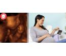 4D ultrazvuk v těhotenství! | Slever