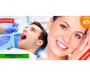 90min. ordinační bělení zubů SDI POLA Profesional! | Hyperslevy