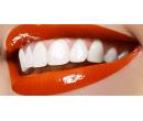 Šetrné bělení zubů neperoxidovým gelem | Slevomat