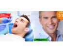 Dentální hygiena v délce 60 min | Hyperslevy
