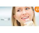 Neperoxidové bělení zubů  | Hyperslevy