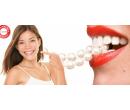Bělení zubů + remineralizace zubní skloviny | Slever