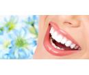 Laserové zesvětlení zubů Star White | Slevomat