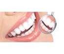 Profesionální dentální hygiena s bělením zubů | Radiomat
