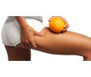 5 vstupů na Rolletic a anticelulitidní masáž  | Radiomat