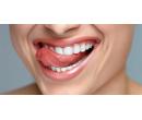 Šetrné zesvětlení zubů bez peroxidu   Slevomat