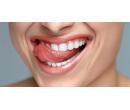Kompletní dentální hygiena včetně Air-flow | Slevomat