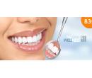 40min. bezbolestné neperoxidové bělení zubů  | Hyperslevy