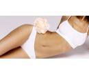 Ultrazvuková liposukce a lymfodrenáž či vacushape   Slevomat