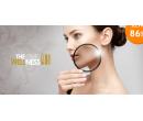 Kosmetická ošetření pro odstranění akné | Hyperslevy