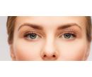 Redukce nadbytečné kůže na víčkách | Slevomat