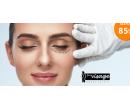 Lifting očních víček bez skalpelu a bolesti | Hyperslevy