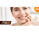 Bezperoxidové bělení zubů s aktivním uhlím  | Hyperslevy