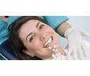 Zubní implantát Alpha-Bio, vhojovací váleček  | Slevomat