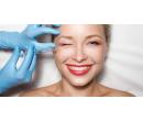 Vyhlazení mimických vrásek v obličeji botoxem   Slevomat