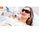 Laserové odstranění chloupků v podpaží | Hyperslevy