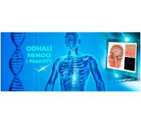 Diagnostika zdravotního stavu včetně 3D scanu   Hyperslevy